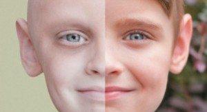 Dal-cancro-si-può-guarire-lo-dimostra-il-sorriso-del-piccolo-Noah